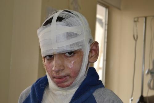 asyrie enfant blessé