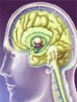 aaccident-vasculaire-cerebra