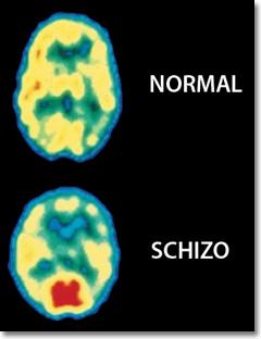 aschizoPC_7