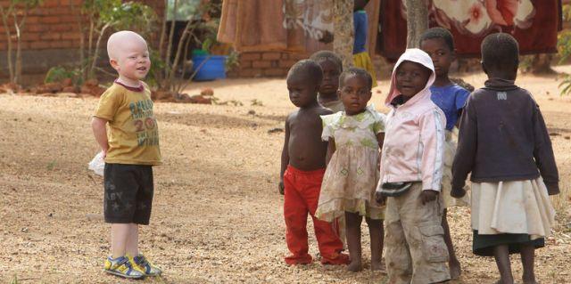 4940968_3_02b2_cassim-jaffalie-3-ans-un-enfant-albinos-du_2c7137e1fe136d804d22b8dc5d233a3c
