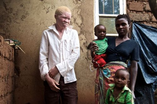 le-monde-albinos_patrick-sa-femme-moureen-son-fils-detauran_36d27997df49dab5df0465863097e303